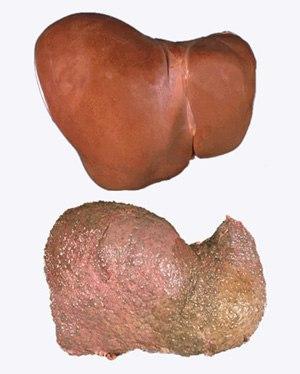 Гепатит с и в симптомы изжоги